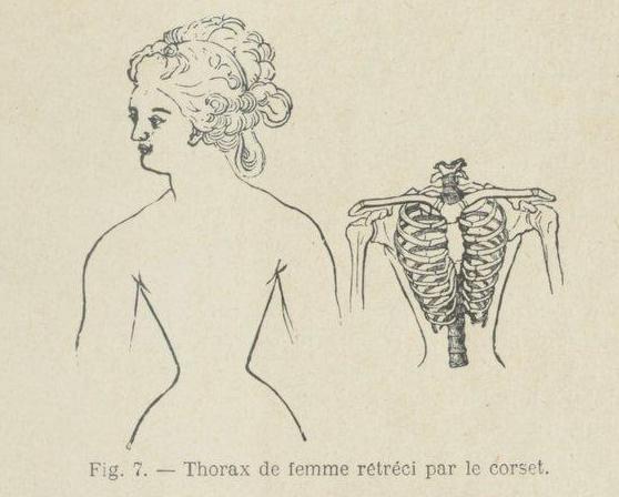 marine corset