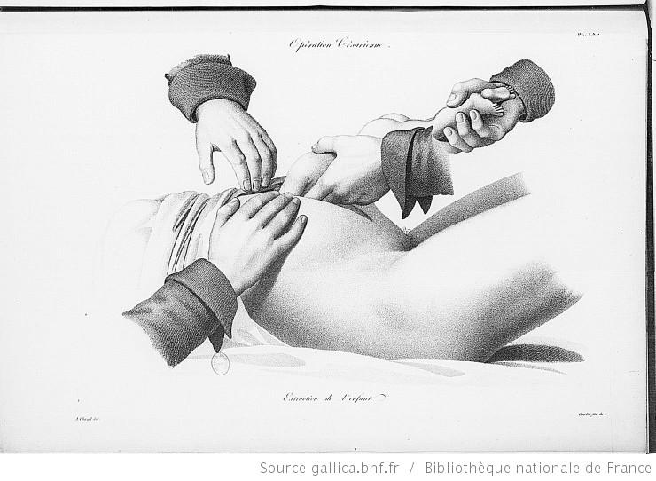 Gallica - césarienne 1822