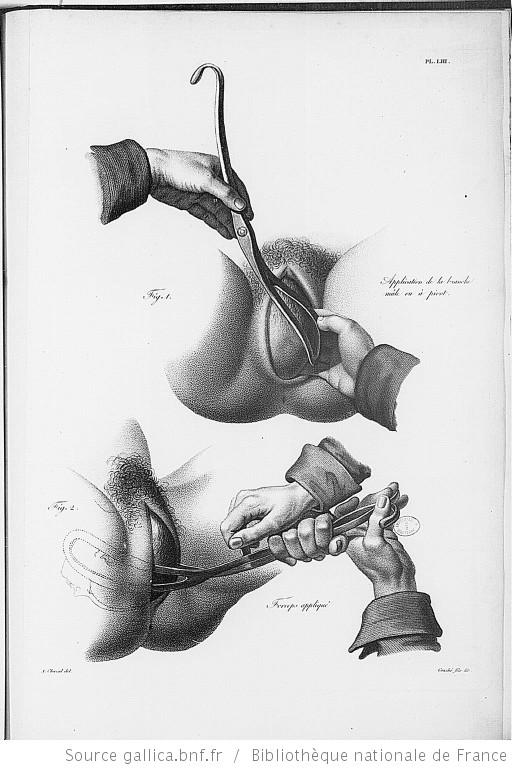Gallica - forceps 1822