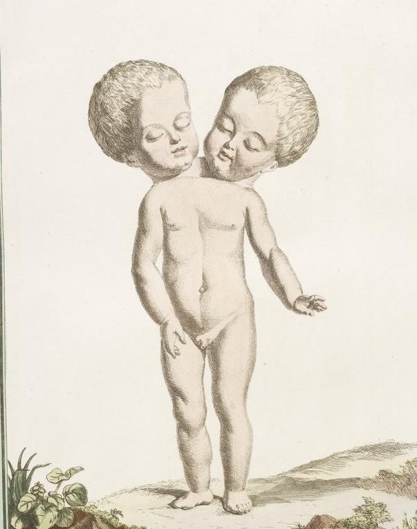 Enfant à deux têtes