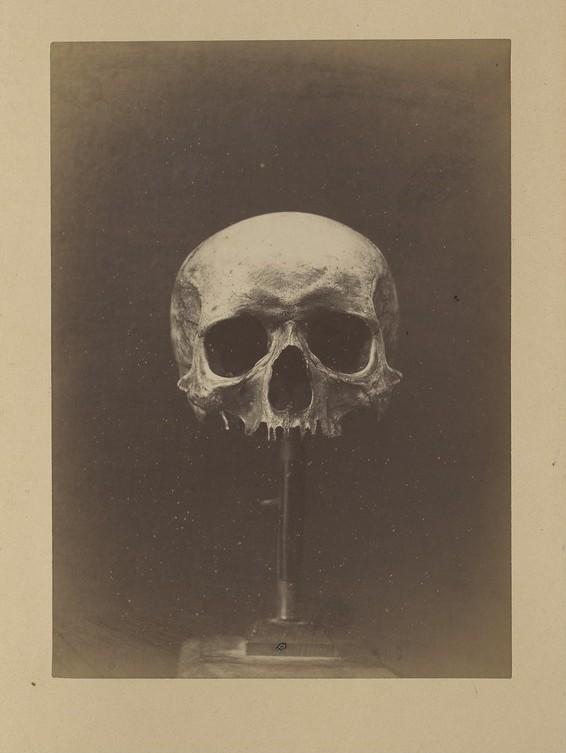 Le crâne de Charlotte Corday - Gallica