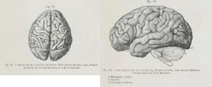 Cerveau de la Vénus Hottentote