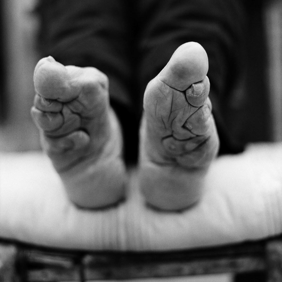pieds bandés