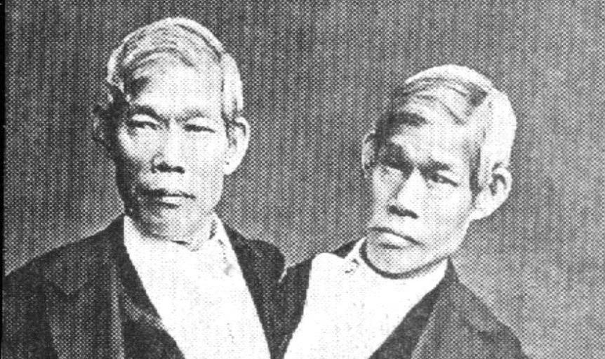 les siamois Eng et Chang